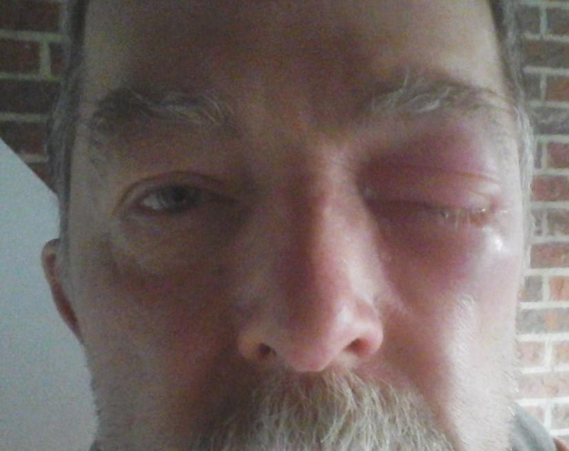 Gezwollen Ooglid En Tranend Oog Medischcontact