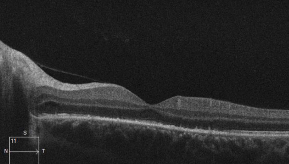 Foto 2:Optical coherence tomography (OCT; netvliesscan) van het linkeroog.