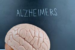 Van Rijn niet naar Alzheimercongres