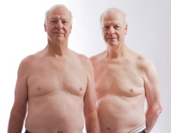 Verkeerde patiënt aan prostaat geopereerd