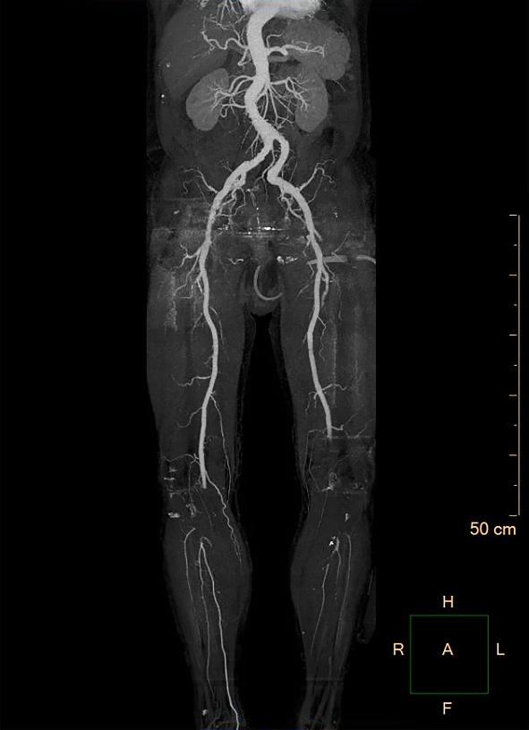 rechter coronair arterie