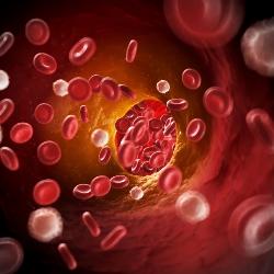 Beter herstel na trombectomie voor herseninfarct
