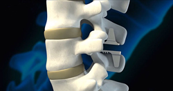 Neurochirurgen pleiten voor betere regels implantaten